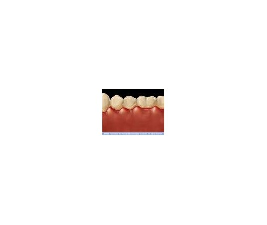 Tratamiento Bucal (Gingivitis,...)