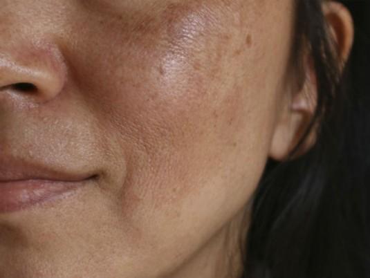 protector solar cara manchas en la piel